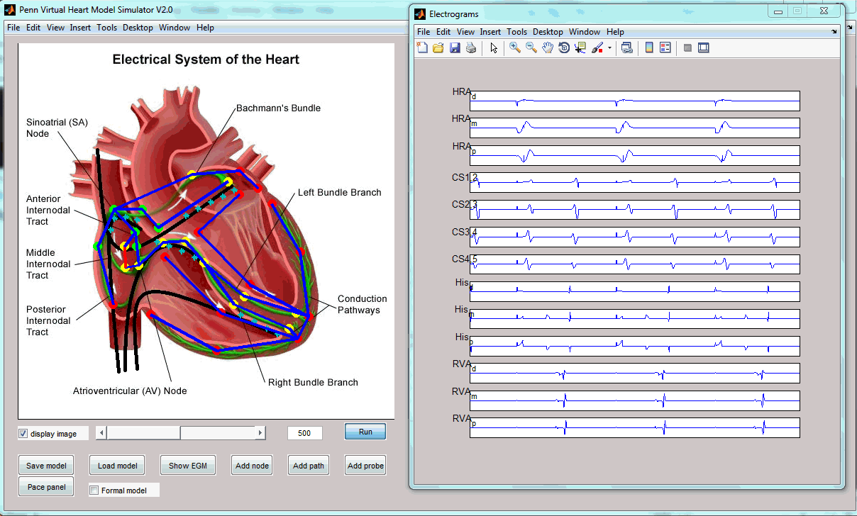 Virtual Heart Model image